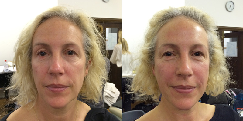 before and after one treatment of facial rejuvenation.