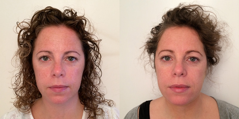 before and after 8 treatments of facial rejuvenation